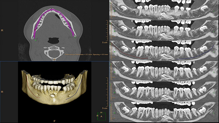dental planning thumbnail