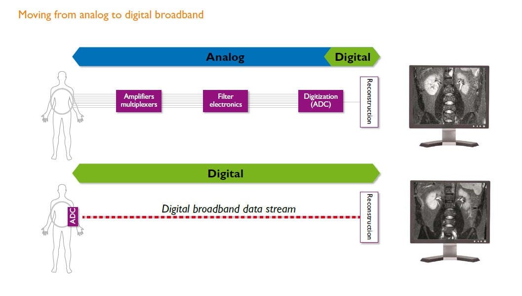 moving from analog to digital broadband