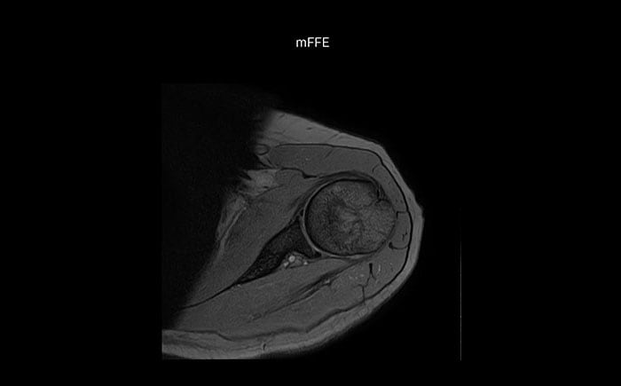 Shoulder MRI with high quality, mFFE