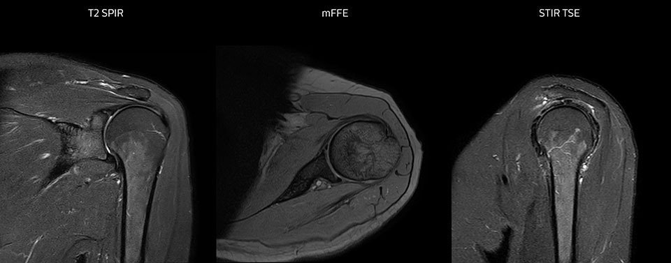 Shoulder MRI with high quality, large coverage