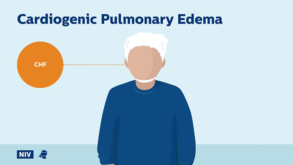 Cardiogenic Pulmonary Edema question video