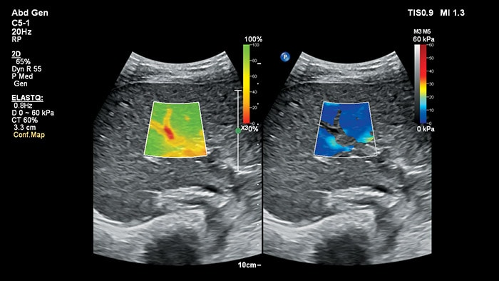 Wave elastography