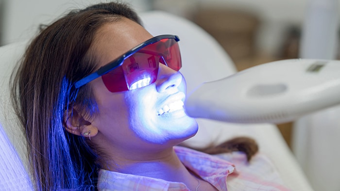 Is Teeth Whitening Safe?